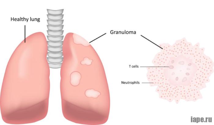 Саркоидоз легких: симптомы и лечение