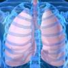 Саркоидоз легких – что же это такое?