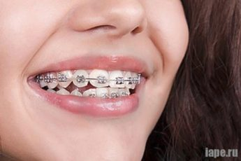 Брекеты для зубов