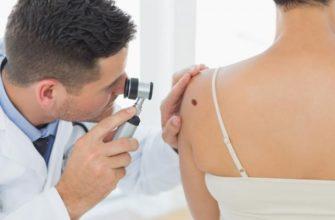 Меланома кожи: симптомы и лечение