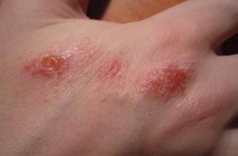 Как правильно лечить грибковый дерматит